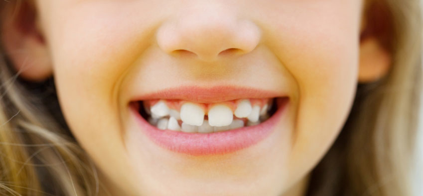 crooked-teeth-before-and-after
